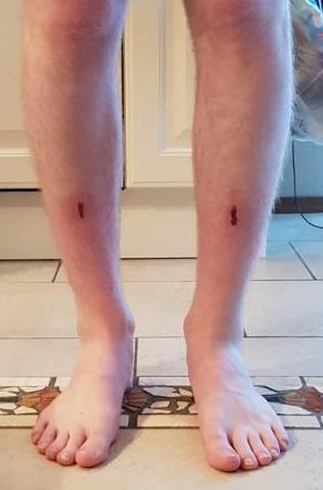 pijn aan scheenbeen door skiën