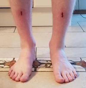 Skischoenen pijn aan scheenbeen